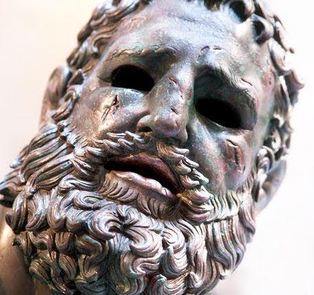 Hellenistic bronze boxer from Rome shows wounds and lascerations to the fighter's face